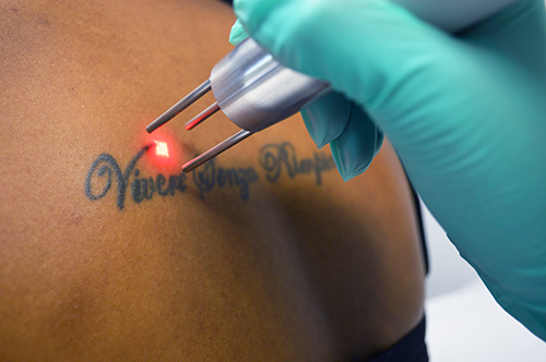 How to Get Your TattooRemoved